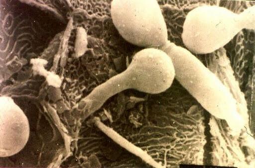 symptomer på candida svamp i maven